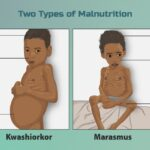 Malnutrition in India its types, causes and effects | UPSC – IAS